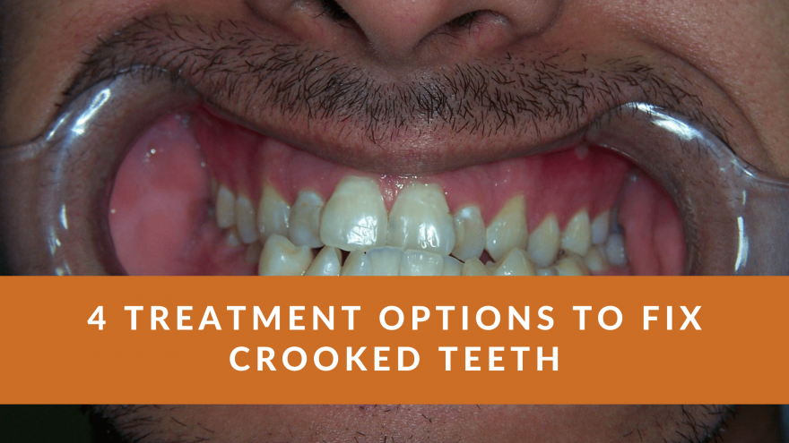 4 Treatment Options to Fix Crooked Teeth